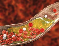 cholesterol jelentese magyarul