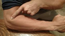 elbow jelentese magyarul