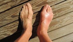 swelling jelentese magyarul